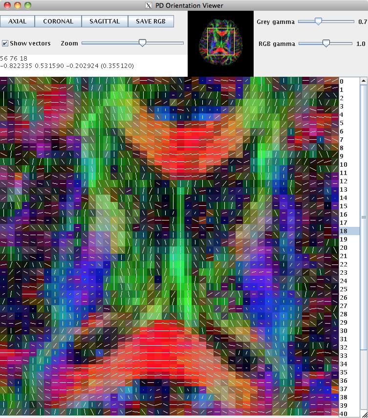 Camino | Tutorial | Diffusion tensor imaging (DTI)